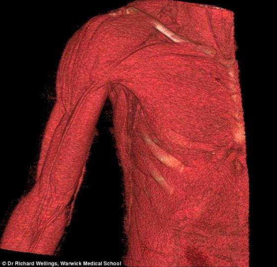 到一部展示肩部解剖结构的3D影片.通过这种对比,参观者可以更直